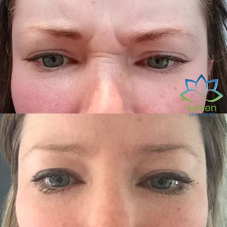 picture of face of a woman before and after profhilo treatment by lumen skin clinic
