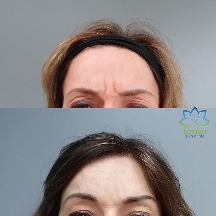 picture of profhilo before and after treatment by lumena skin clinic in sevenoaks