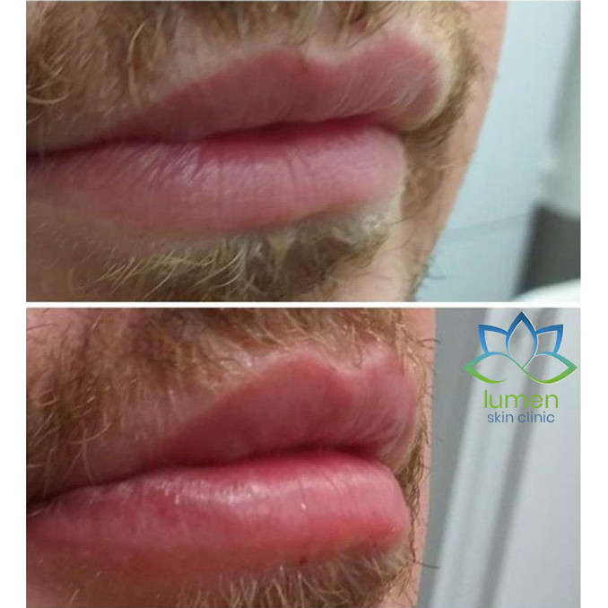 picture of man lips before and after dermal filling by lumen skin clinic