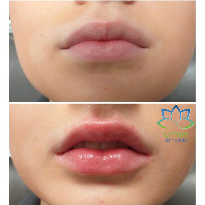 picture of a woman lips before and after dermal fillers by lumen skin clinic